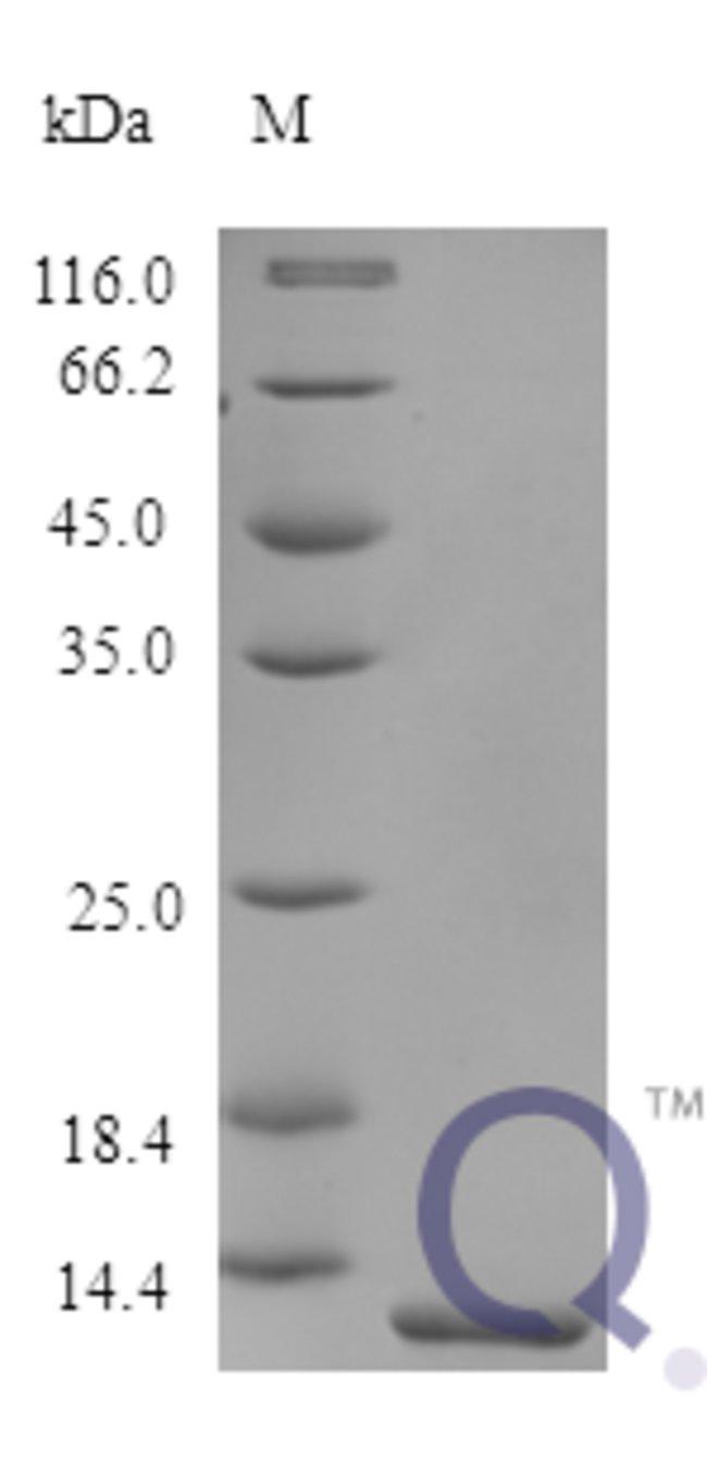 enQuireBio™Recombinant Human Trefoil factor 2 Protein 250μg enQuireBio™Recombinant Human Trefoil factor 2 Protein