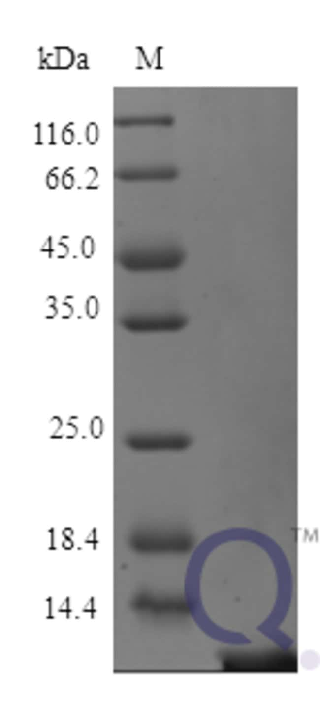 enQuireBio™ Recombinant Human Thymosin beta-4 Protein 100μg enQuireBio™ Recombinant Human Thymosin beta-4 Protein