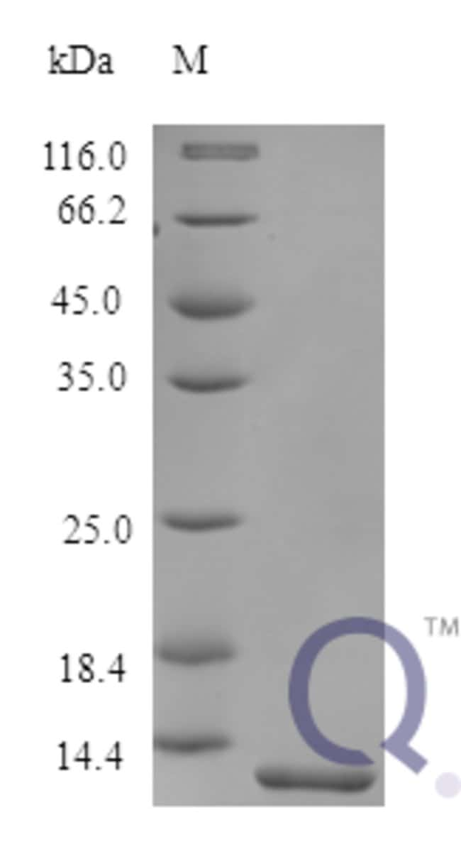 enQuireBio™Recombinant Human Melanoma-derived growth regulatory Protein 5μg enQuireBio™Recombinant Human Melanoma-derived growth regulatory Protein