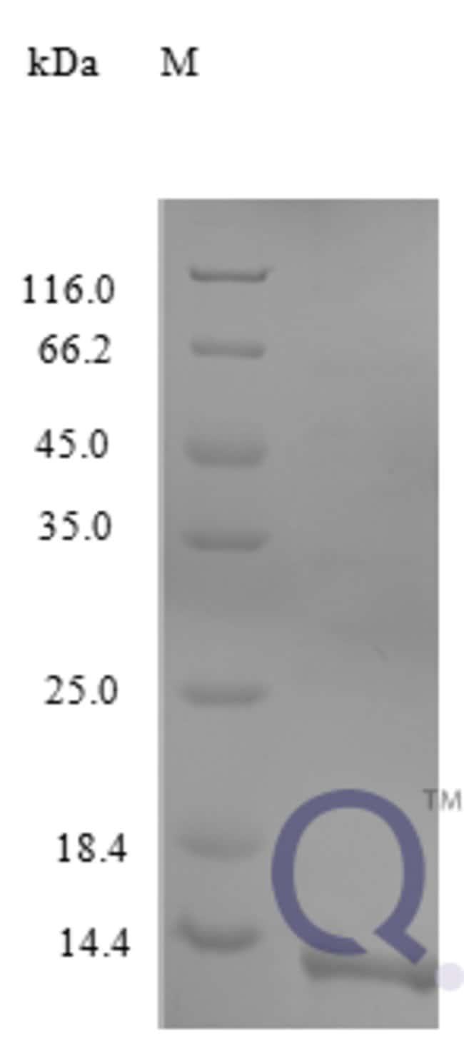 enQuireBio™Recombinant Human CCL17 / TARC / SCYA17 Protein 100μg enQuireBio™Recombinant Human CCL17 / TARC / SCYA17 Protein