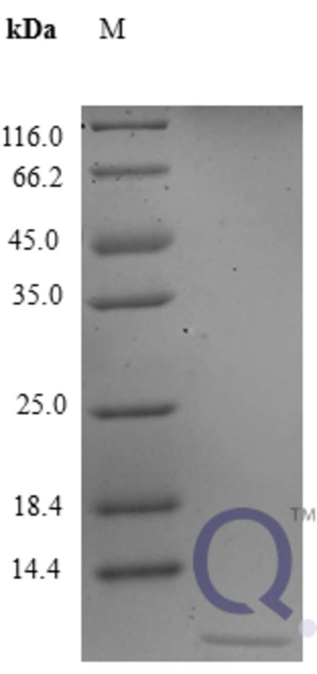 enQuireBio™Recombinant Human CXCL3 / GRO gamma Protein 2μg enQuireBio™Recombinant Human CXCL3 / GRO gamma Protein