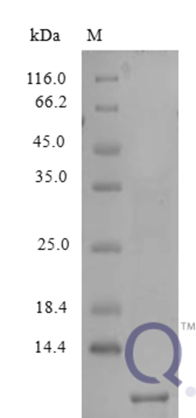 enQuireBio™Recombinant Human NAP-2 / PPBP / CXCL7 Protein 2μg enQuireBio™Recombinant Human NAP-2 / PPBP / CXCL7 Protein