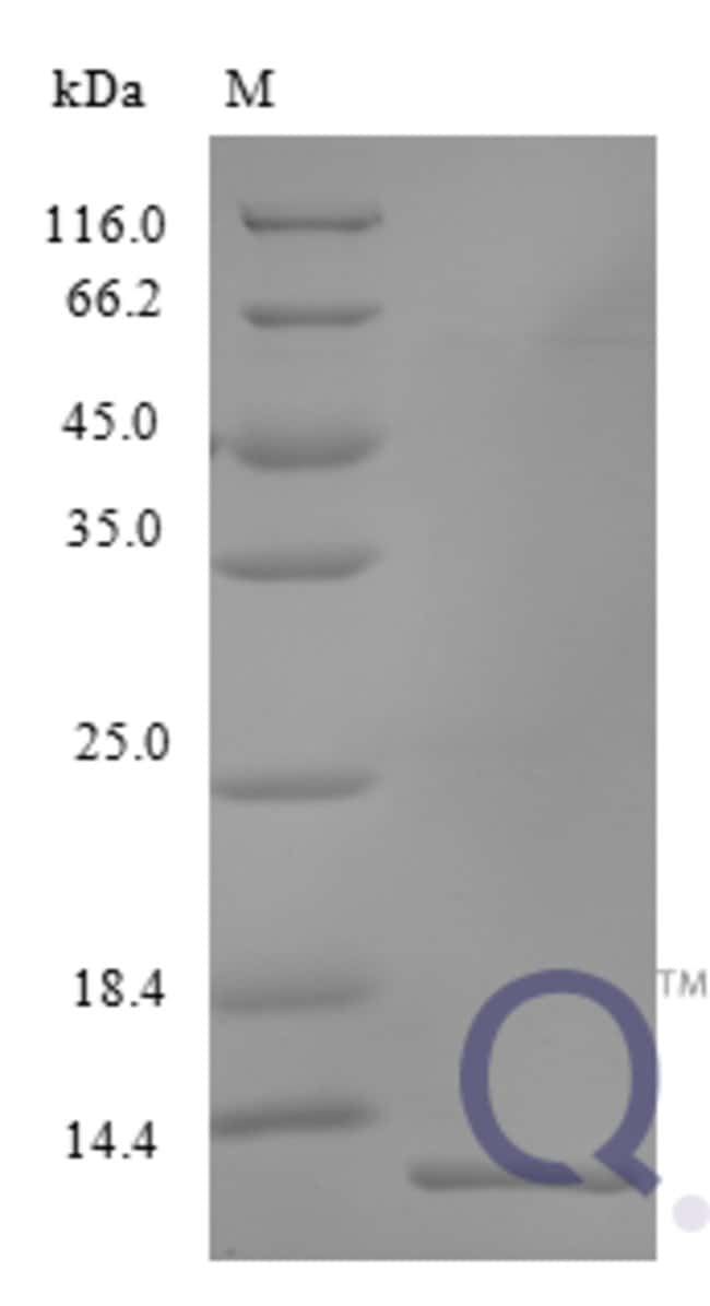 enQuireBio™Recombinant Human C-X-C motif chemokine 17 Protein 5μg enQuireBio™Recombinant Human C-X-C motif chemokine 17 Protein