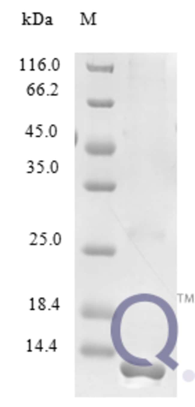enQuireBio™Recombinant Human XCL1 Protein 100μg enQuireBio™Recombinant Human XCL1 Protein