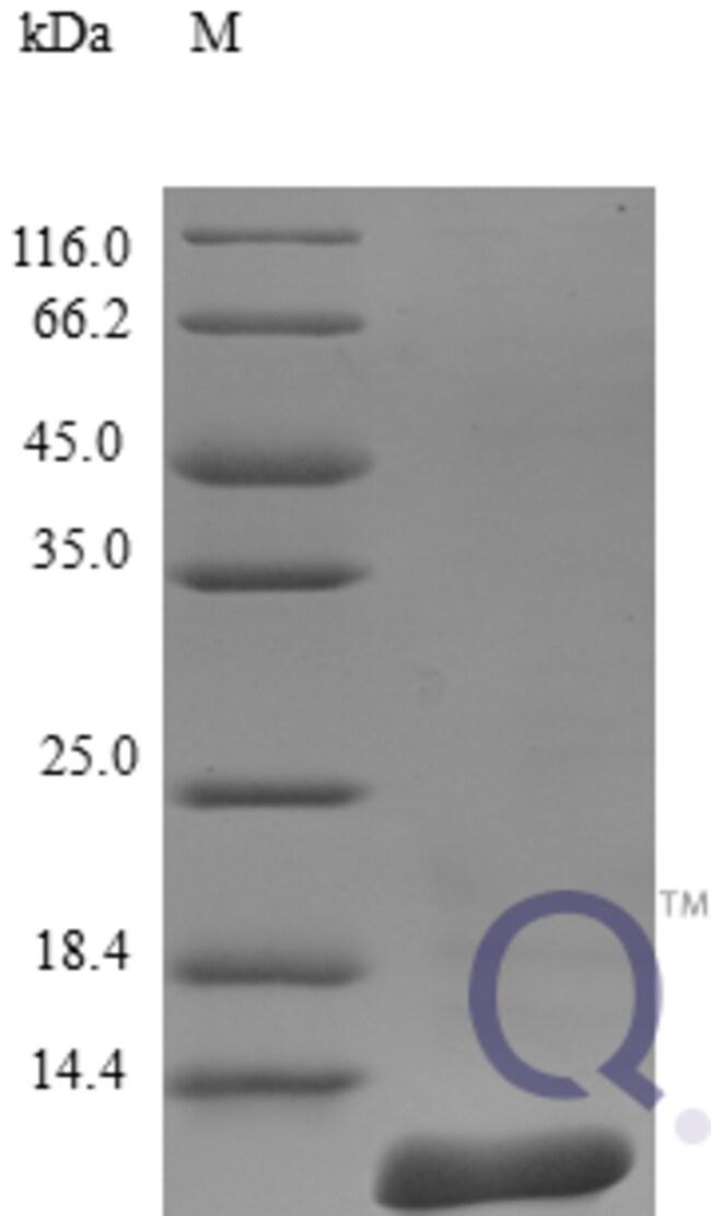 enQuireBio™Recombinant Human CCL8 / MCP-2 Protein 2μg enQuireBio™Recombinant Human CCL8 / MCP-2 Protein
