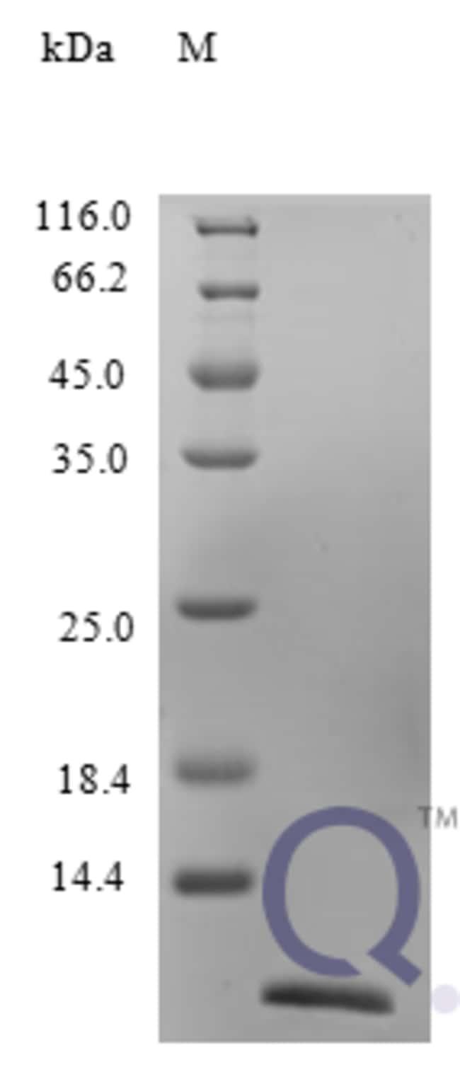 enQuireBio™Recombinant Human CCL13 / MCP-4 Protein 100μg enQuireBio™Recombinant Human CCL13 / MCP-4 Protein