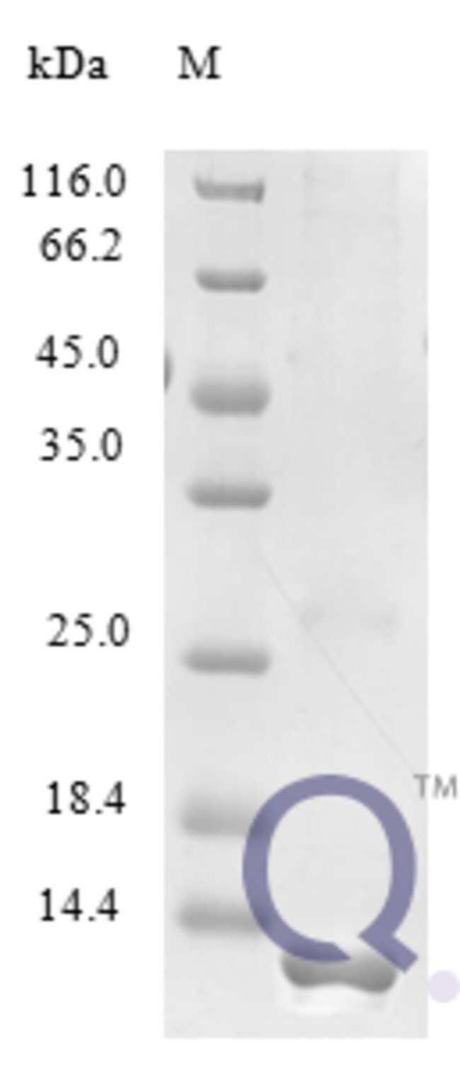 enQuireBio™ Recombinant Human CCL21 / 6Ckine Protein 250μg enQuireBio™ Recombinant Human CCL21 / 6Ckine Protein