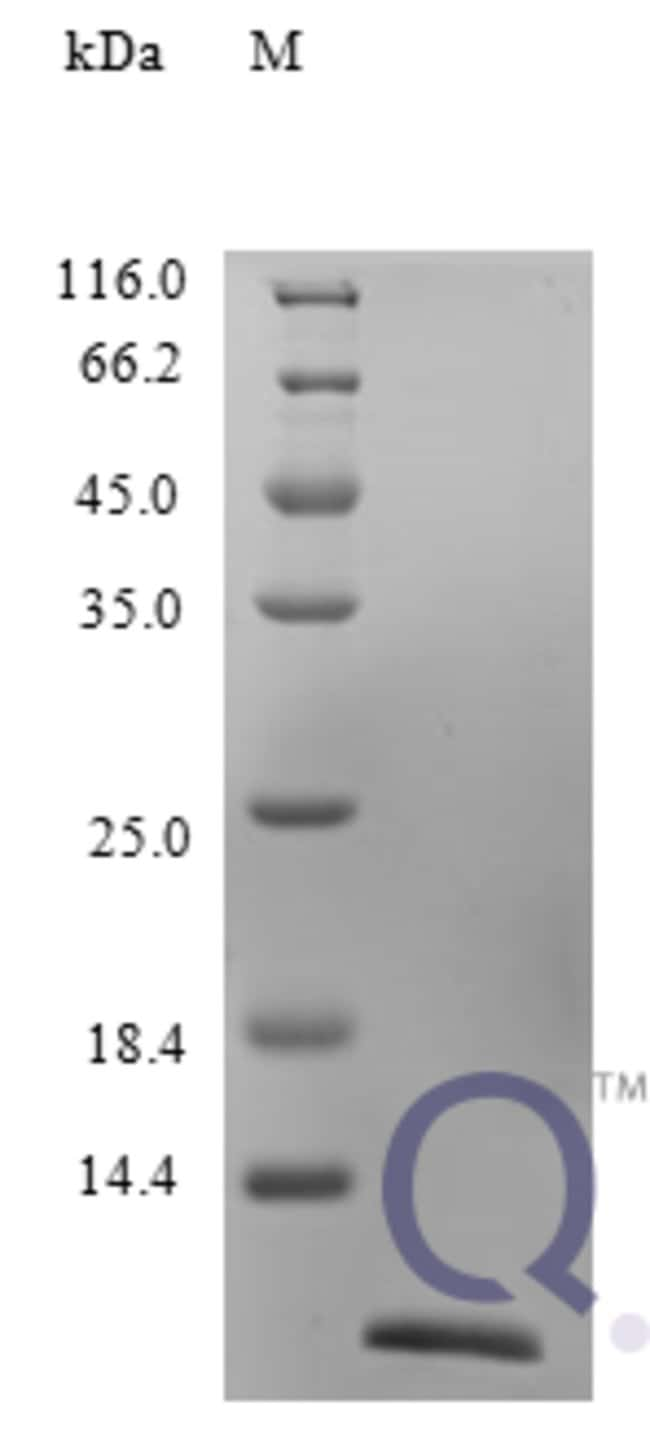 enQuireBio™ Recombinant Human CCL22 / MDC Protein 250μg enQuireBio™ Recombinant Human CCL22 / MDC Protein