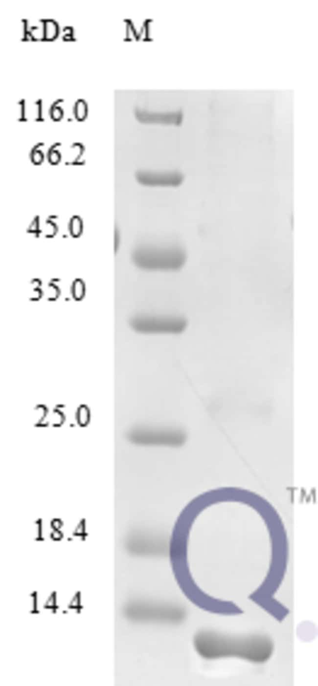 enQuireBio™ Recombinant Human CCL23 / MIP 3 Protein 100μg enQuireBio™ Recombinant Human CCL23 / MIP 3 Protein