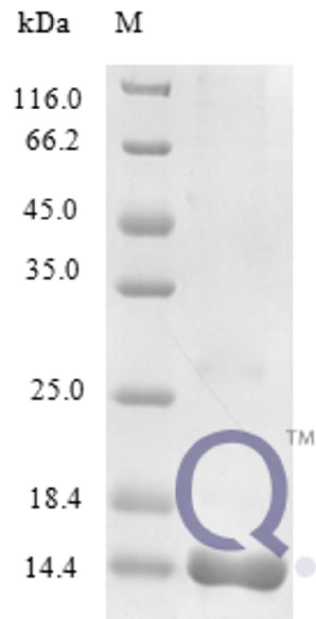 enQuireBio™Recombinant Human C-C motif chemokine 25 Protein 20μg enQuireBio™Recombinant Human C-C motif chemokine 25 Protein