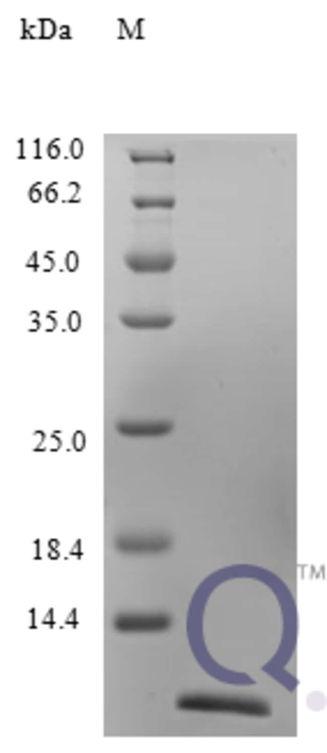enQuireBio™ Recombinant Human CCL26 / Eotaxin 3 Protein 250μg enQuireBio™ Recombinant Human CCL26 / Eotaxin 3 Protein