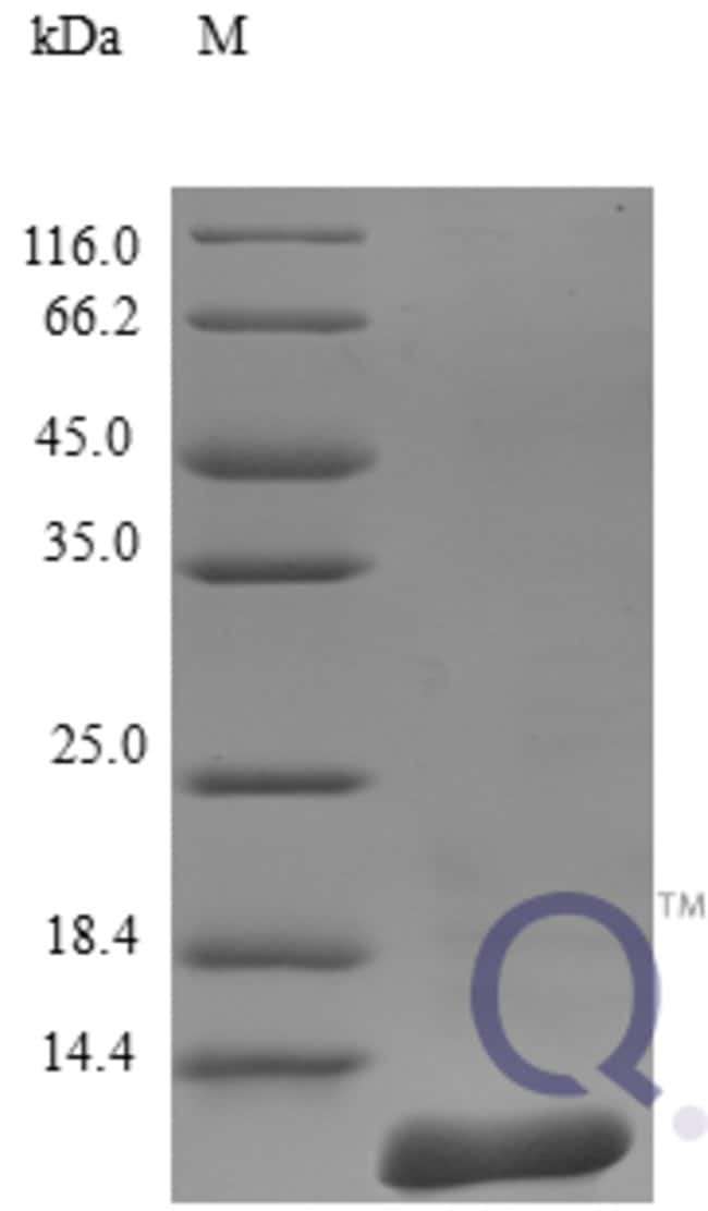 enQuireBio™ Recombinant Human CCL27 / CTACK Protein 250μg enQuireBio™ Recombinant Human CCL27 / CTACK Protein