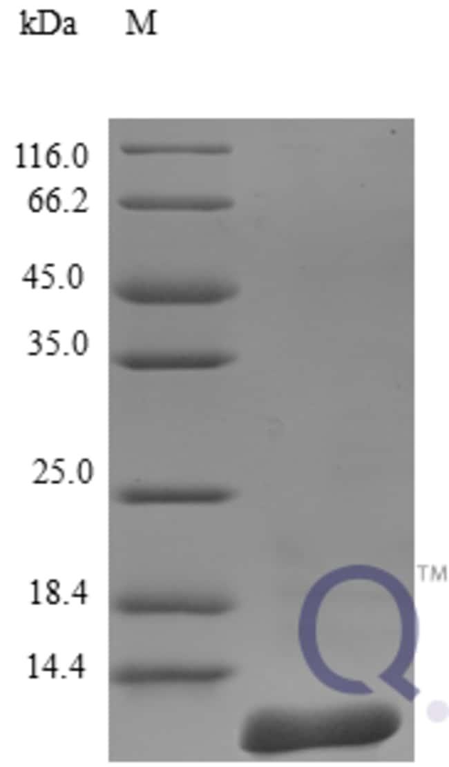 enQuireBio™Recombinant Human CCL27 / CTACK Protein 5μg enQuireBio™Recombinant Human CCL27 / CTACK Protein