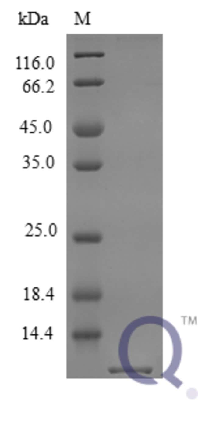 enQuireBio™Recombinant Mouse CXCL1 / MGSA / NAP-3 Protein 20μg enQuireBio™Recombinant Mouse CXCL1 / MGSA / NAP-3 Protein