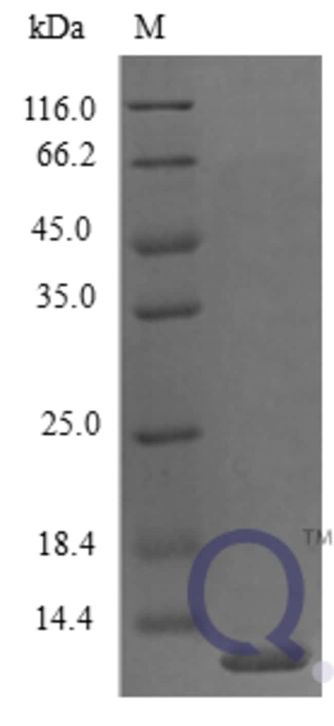 enQuireBio™Recombinant Mouse CXCL5 / ENA-78 Protein 20μg enQuireBio™Recombinant Mouse CXCL5 / ENA-78 Protein