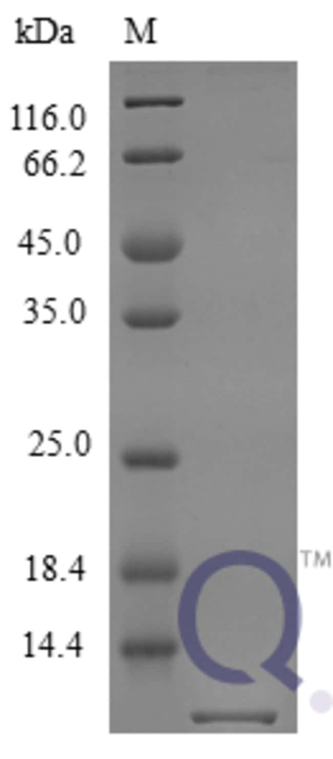 enQuireBio™ Recombinant Mouse CXCL10 / Crg-2 Protein 25μg enQuireBio™ Recombinant Mouse CXCL10 / Crg-2 Protein