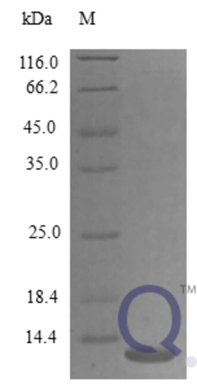 enQuireBio™Recombinant Mouse CXCL14 / BRAK Protein 100μg enQuireBio™Recombinant Mouse CXCL14 / BRAK Protein