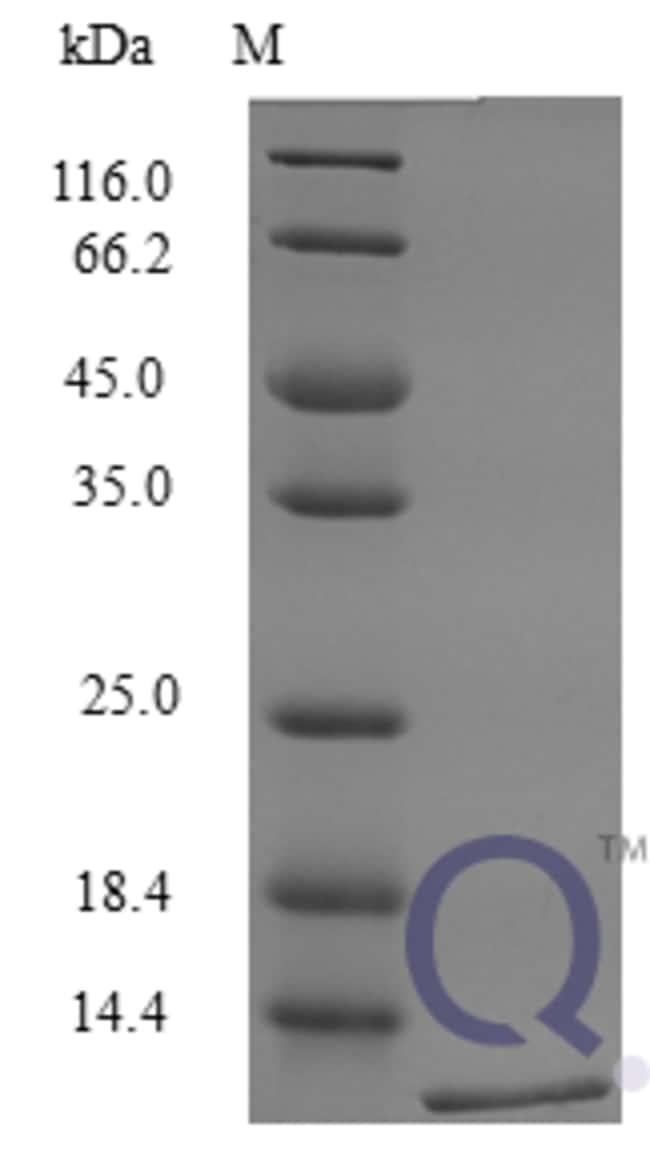 enQuireBio™Recombinant Mouse CXCL16 / SR-PSOX Protein 25μg enQuireBio™Recombinant Mouse CXCL16 / SR-PSOX Protein