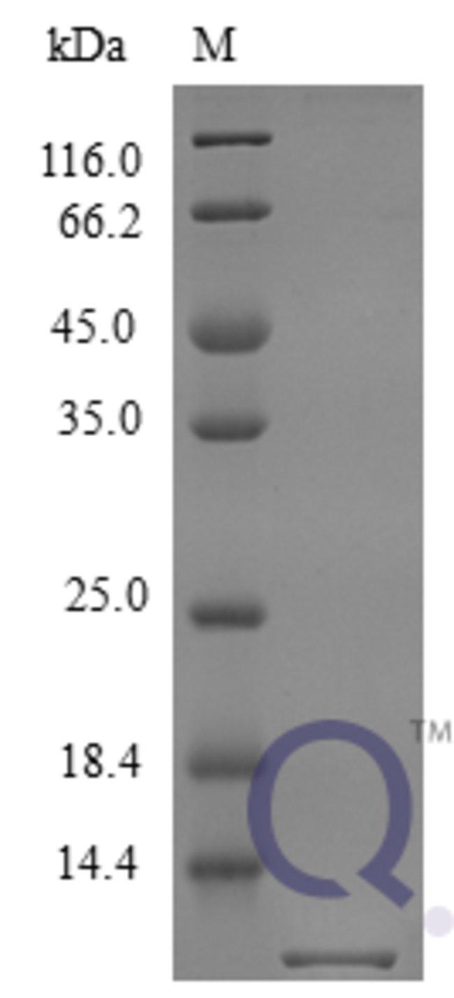 enQuireBio™Recombinant Mouse Fractalkine / CX3CL1 Protein 250μg enQuireBio™Recombinant Mouse Fractalkine / CX3CL1 Protein