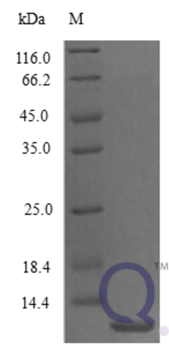 enQuireBio™Recombinant Mouse CCL3 / Mip1a Protein 100μg enQuireBio™Recombinant Mouse CCL3 / Mip1a Protein