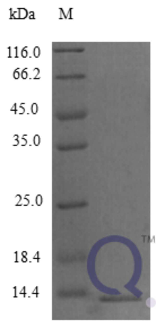 enQuireBio™Recombinant Mouse C-C motif chemokine 9 Protein 100μg enQuireBio™Recombinant Mouse C-C motif chemokine 9 Protein