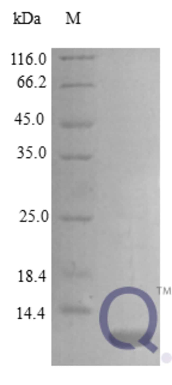 enQuireBio™Recombinant Mouse CCL17 / TARC / SCYA17 Protein 250μg enQuireBio™Recombinant Mouse CCL17 / TARC / SCYA17 Protein