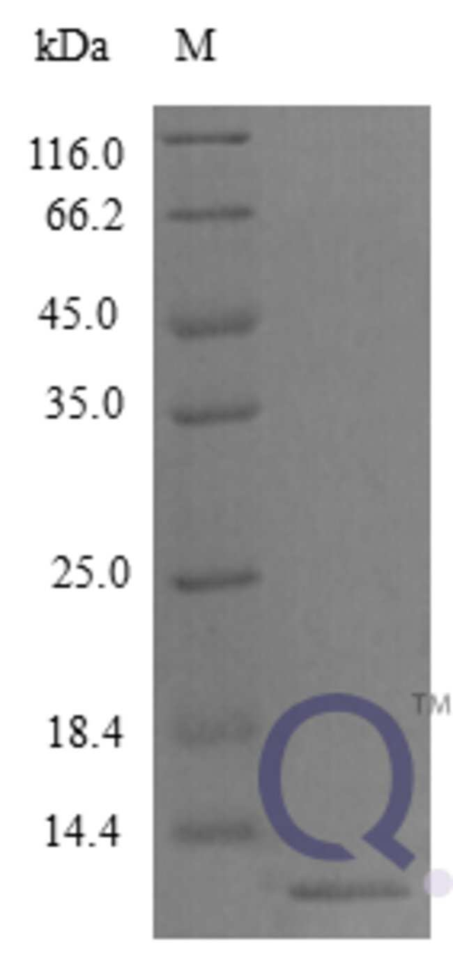 enQuireBio™ Recombinant Mouse CCL22 / MDC Protein 20μg enQuireBio™ Recombinant Mouse CCL22 / MDC Protein