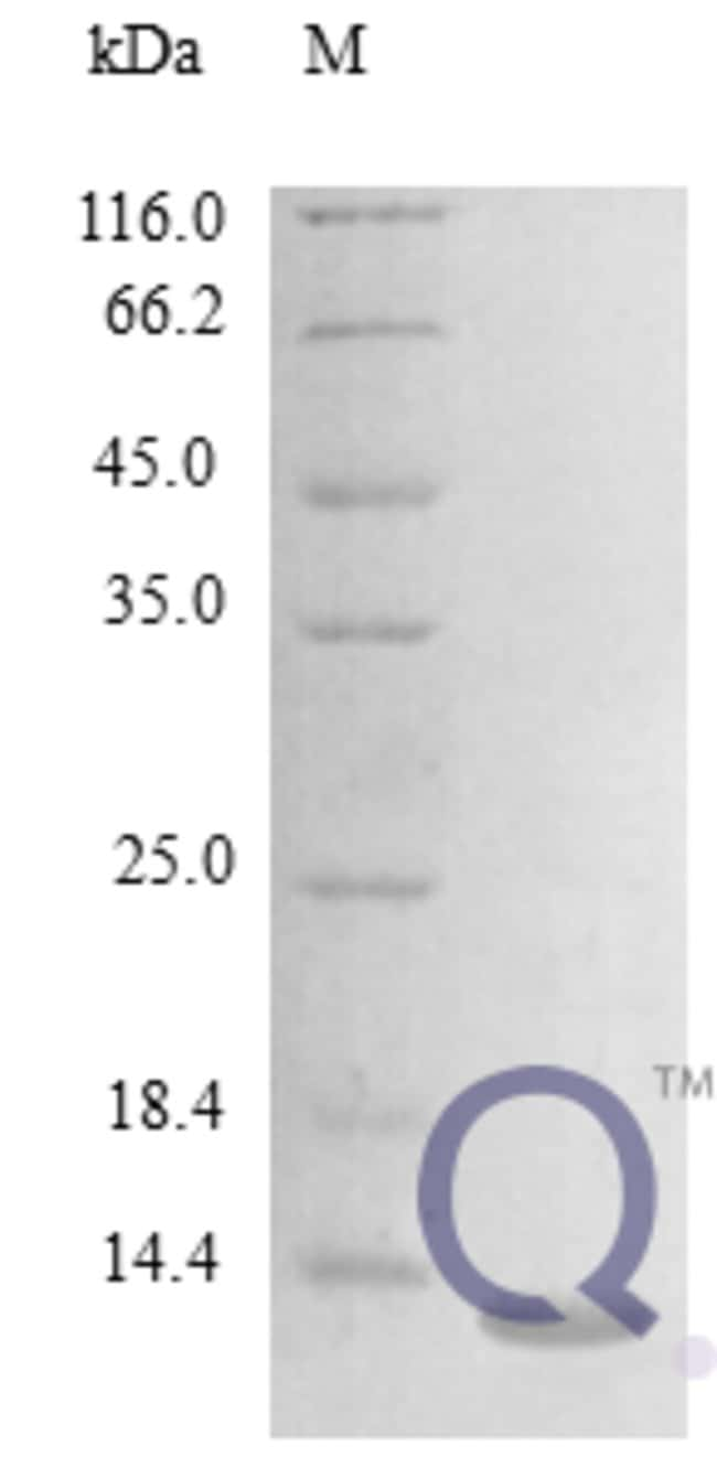 enQuireBio™Recombinant Mouse CCL24 / Eotaxin-2 / MPIF-2 Protein 250μg enQuireBio™Recombinant Mouse CCL24 / Eotaxin-2 / MPIF-2 Protein