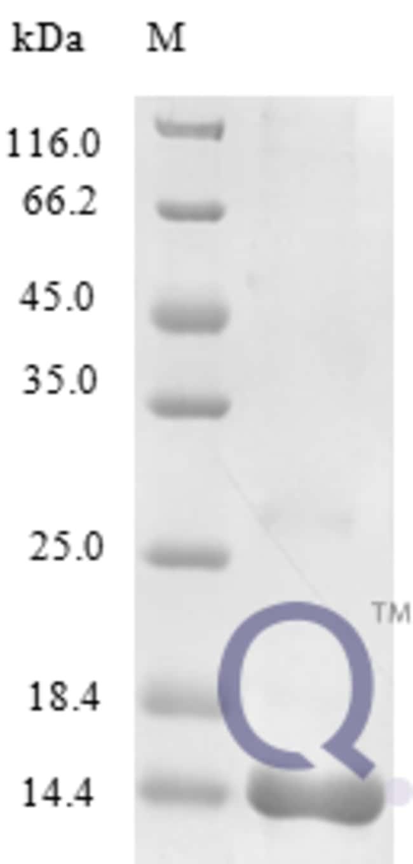enQuireBio™Recombinant Mouse C-C motif chemokine 25 Protein 20μg enQuireBio™Recombinant Mouse C-C motif chemokine 25 Protein
