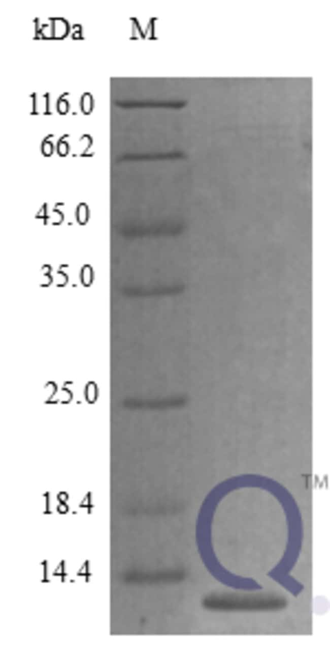 enQuireBio™ Recombinant Mouse CCL27 / CTACK Protein 100μg enQuireBio™ Recombinant Mouse CCL27 / CTACK Protein