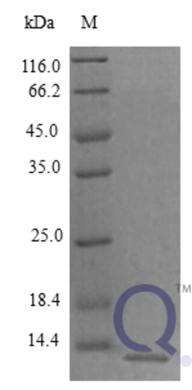 enQuireBio™Recombinant Rat CXCL5 / ENA-78 Protein 5μg enQuireBio™Recombinant Rat CXCL5 / ENA-78 Protein