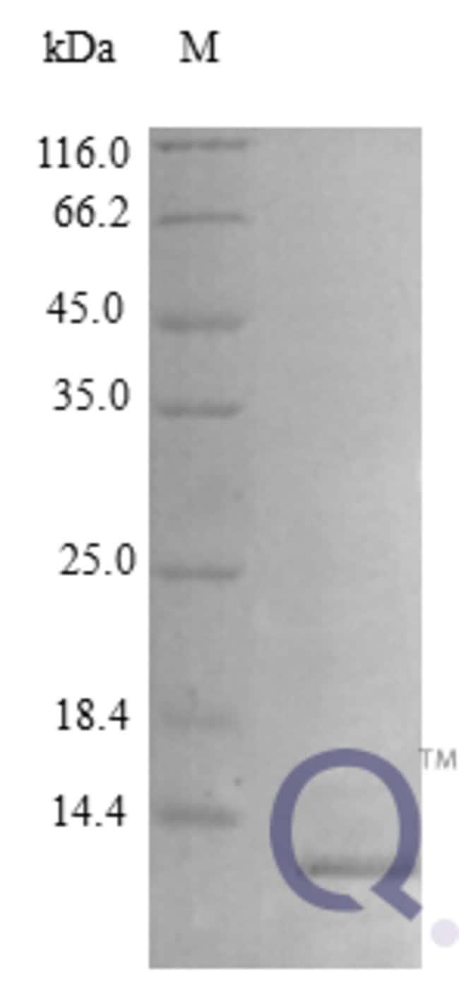 enQuireBio™Recombinant Rat CXCL10 / Crg-2 Protein 100μg enQuireBio™Recombinant Rat CXCL10 / Crg-2 Protein