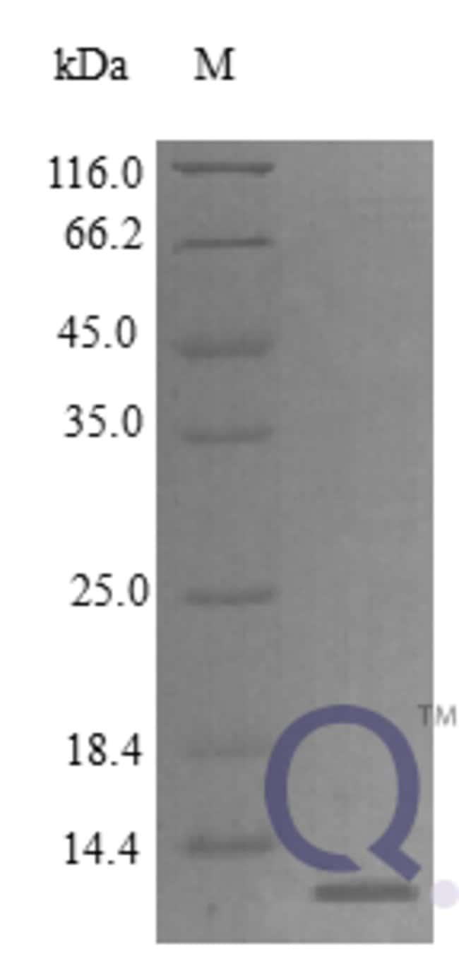 enQuireBio™Recombinant Rat CXCL14 / BRAK Protein 250μg enQuireBio™Recombinant Rat CXCL14 / BRAK Protein