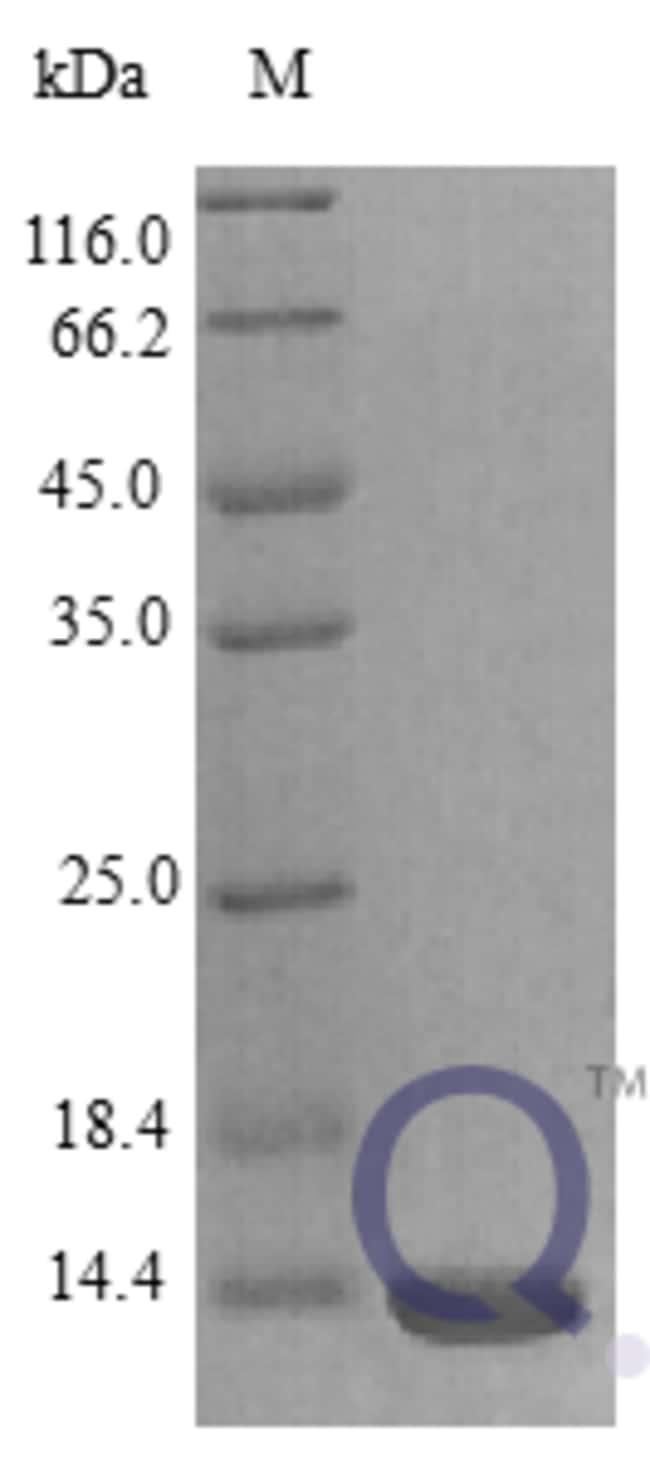 enQuireBio™Recombinant Rat Cxcl17 Protein 2μg enQuireBio™Recombinant Rat Cxcl17 Protein