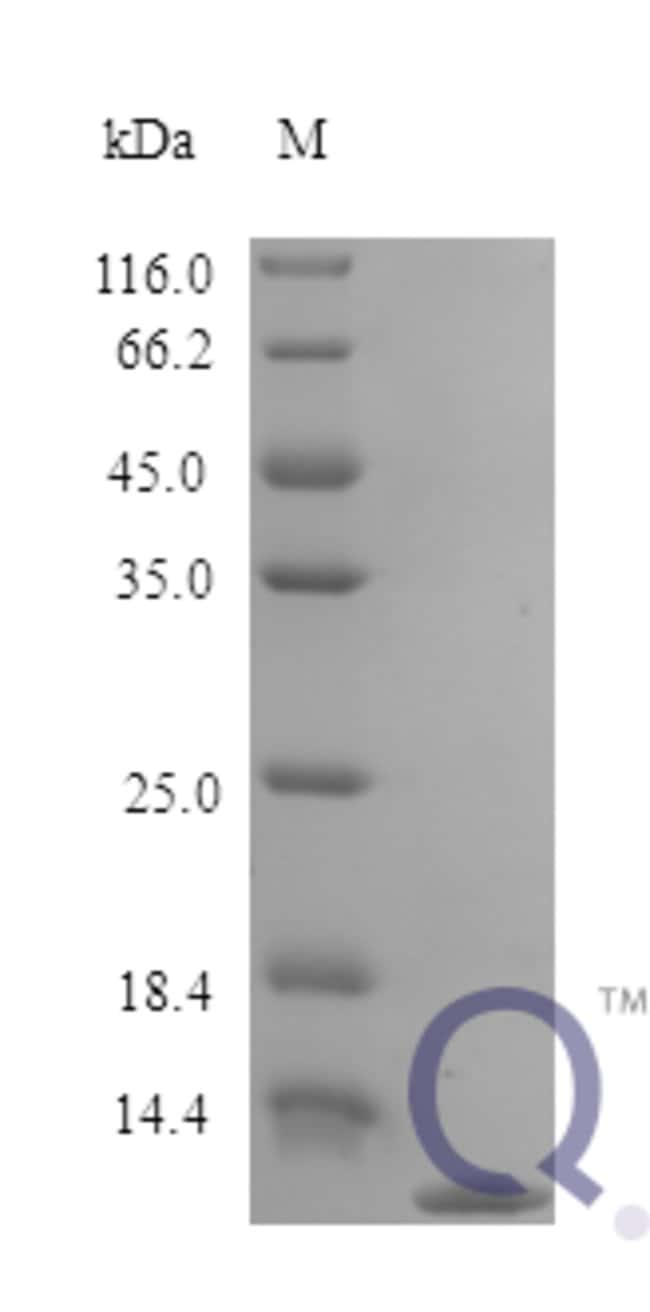 enQuireBio™ Recombinant Rat CCL22 / MDC Protein 5μg enQuireBio™ Recombinant Rat CCL22 / MDC Protein