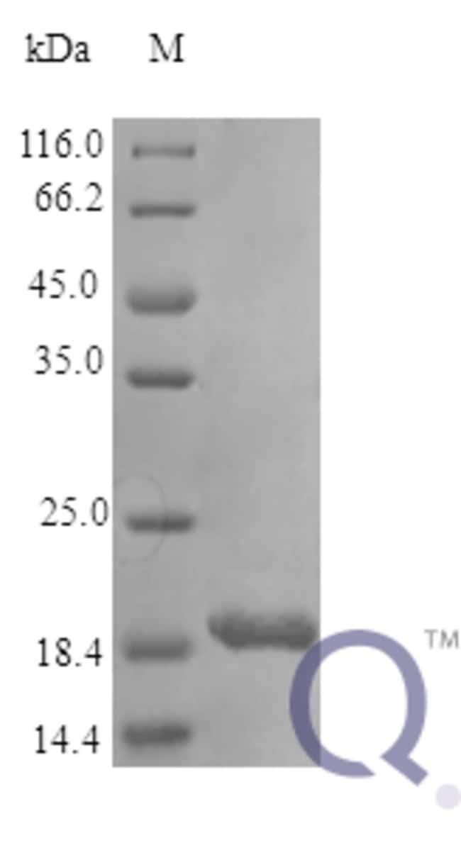 enQuireBio™Recombinant Human IL-11 / interleukin 11 Protein 2μg enQuireBio™Recombinant Human IL-11 / interleukin 11 Protein