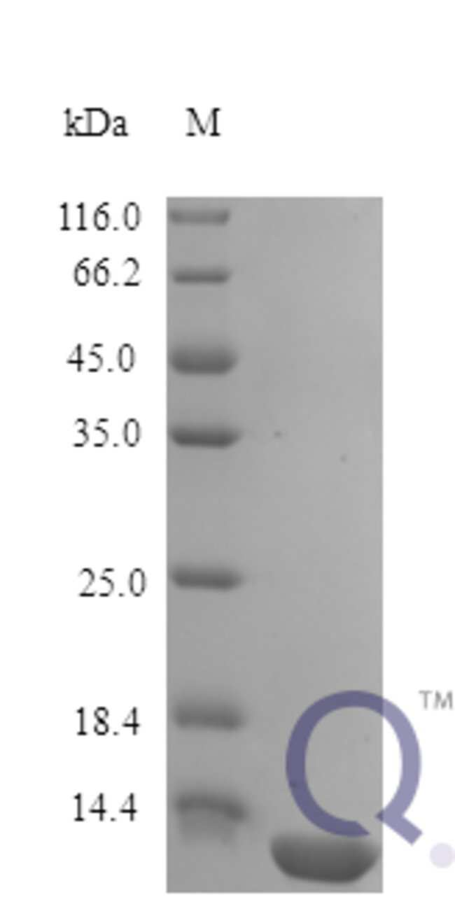 enQuireBio™Recombinant Human IL13 / ALRH Protein 2μg enQuireBio™Recombinant Human IL13 / ALRH Protein