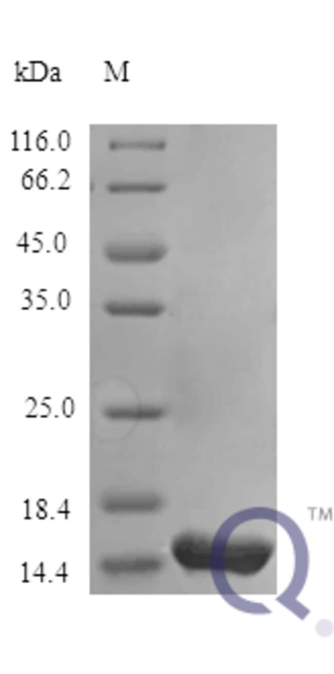 enQuireBio™Recombinant Human IL-31 / IL31 Protein 10μg enQuireBio™Recombinant Human IL-31 / IL31 Protein