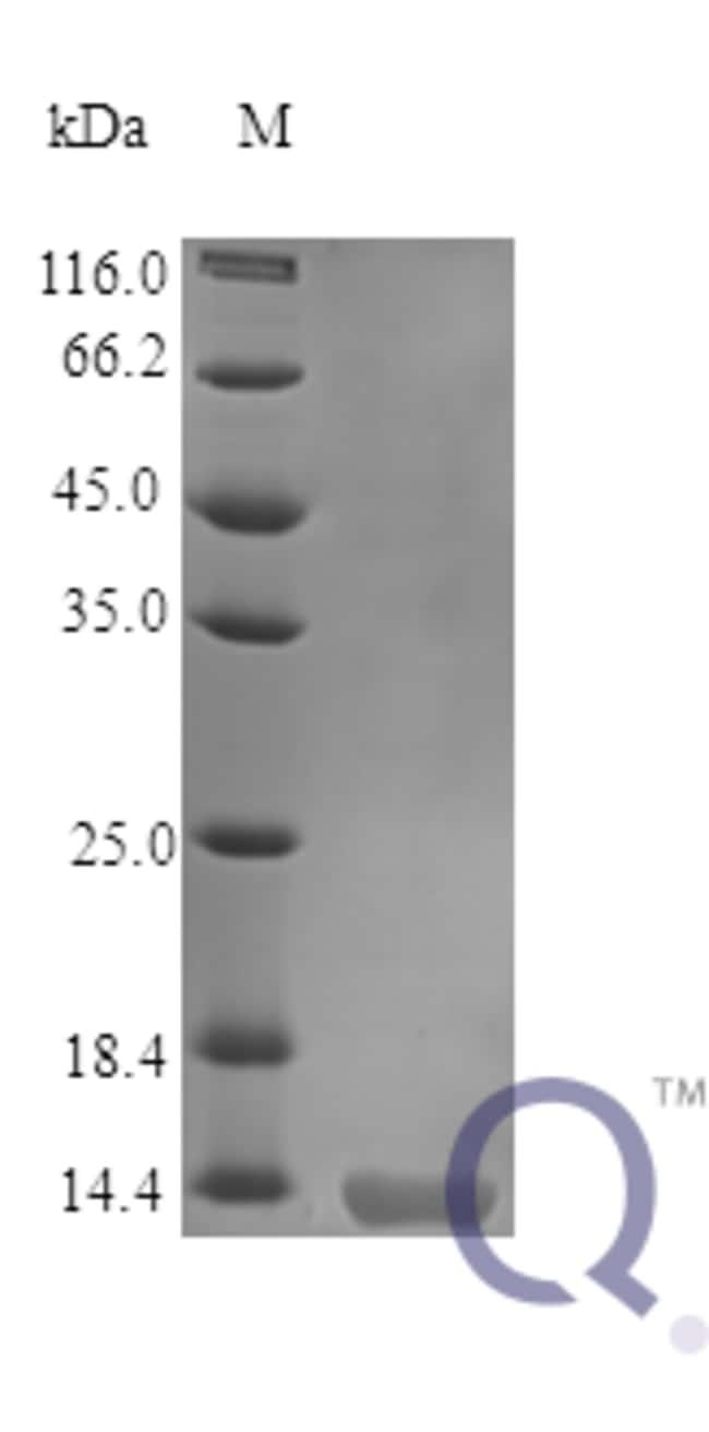 enQuireBio™Recombinant Human GM-CSF / CSF2 Protein 100μg enQuireBio™Recombinant Human GM-CSF / CSF2 Protein
