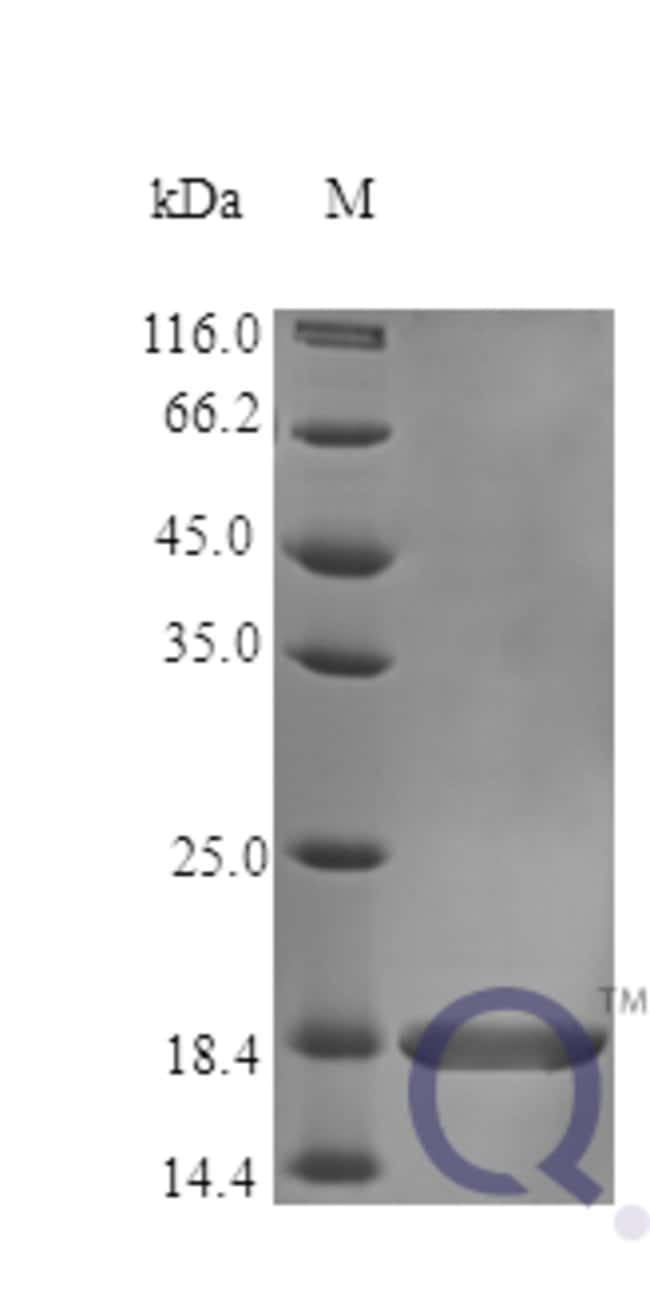 enQuireBio™ Recombinant Human TNF-alpha Protein 50μg enQuireBio™ Recombinant Human TNF-alpha Protein