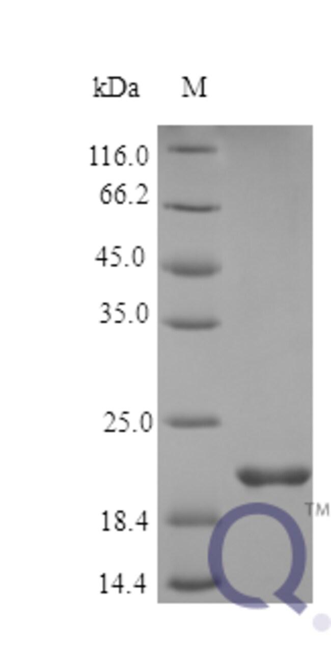 enQuireBio™Recombinant Human Oncostatin M / OSM Protein 2μg enQuireBio™Recombinant Human Oncostatin M / OSM Protein