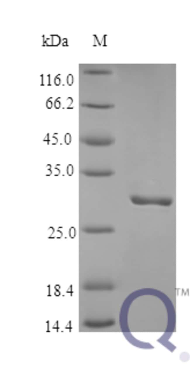 enQuireBio™Recombinant Human Plasminogen Protein 100μg enQuireBio™Recombinant Human Plasminogen Protein