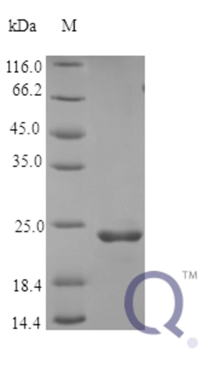 enQuireBio™ Recombinant Human FGF9 Protein 5μg enQuireBio™ Recombinant Human FGF9 Protein