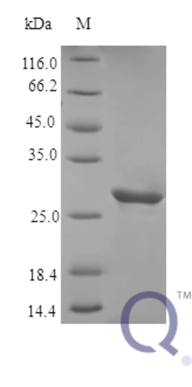 enQuireBio™ Recombinant Human IGFBP3 Protein 100μg enQuireBio™ Recombinant Human IGFBP3 Protein
