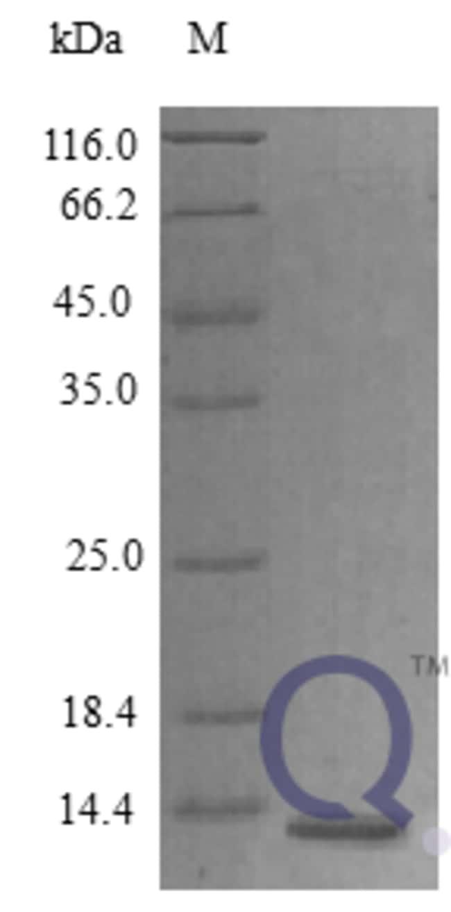 enQuireBio™Recombinant Human Amphiregulin Protein 50μg enQuireBio™Recombinant Human Amphiregulin Protein