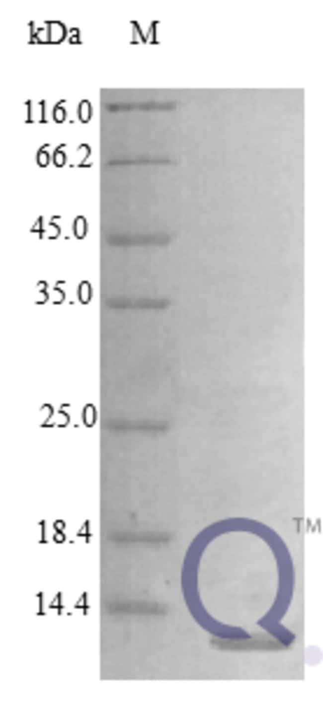 enQuireBio™Recombinant Human HBEGF / DTR Protein 100μg enQuireBio™Recombinant Human HBEGF / DTR Protein