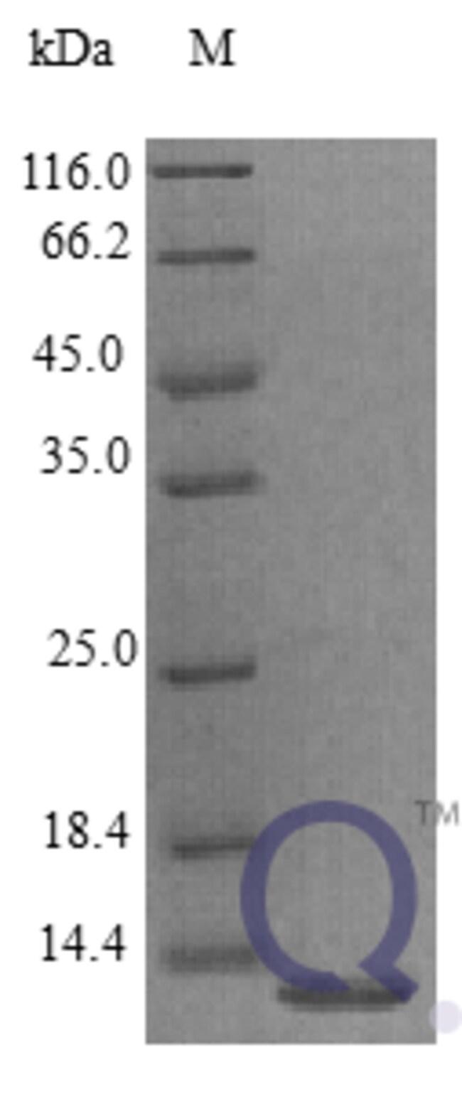 enQuireBio™Recombinant Human EG-VEGF / prokineticin-1 Protein 250μg enQuireBio™Recombinant Human EG-VEGF / prokineticin-1 Protein
