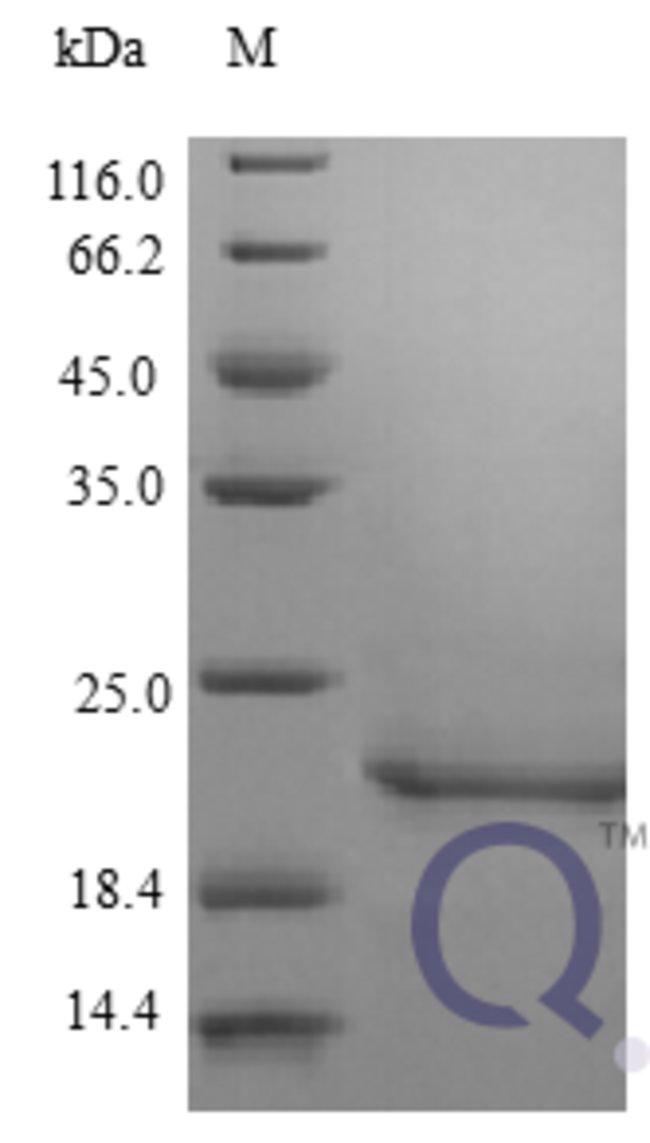 enQuireBio™Recombinant Human IFNB1 / IFN-beta / Interferon beta Protein 2μg enQuireBio™Recombinant Human IFNB1 / IFN-beta / Interferon beta Protein
