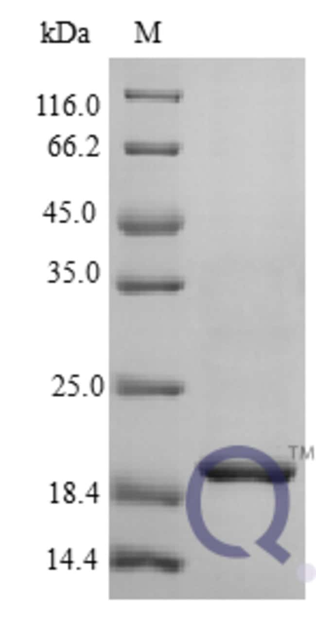 enQuireBio™Recombinant Human IL-29 / Interleukin-29 Protein 20μg enQuireBio™Recombinant Human IL-29 / Interleukin-29 Protein