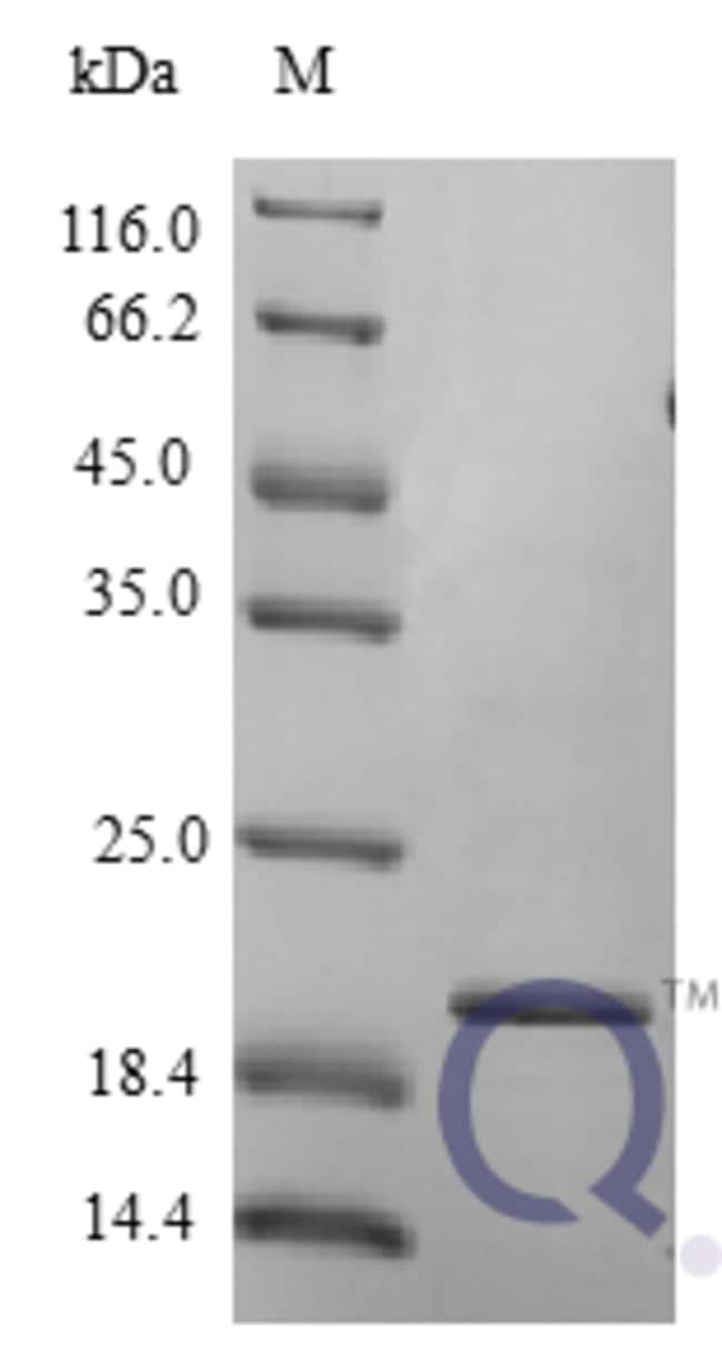 enQuireBio™Recombinant Human IFN omega 1 / IFNW1 Protein 250μg enQuireBio™Recombinant Human IFN omega 1 / IFNW1 Protein